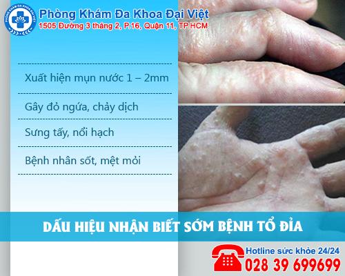 Tìm hiểu chung về bệnh tổ đỉa ở tay chân