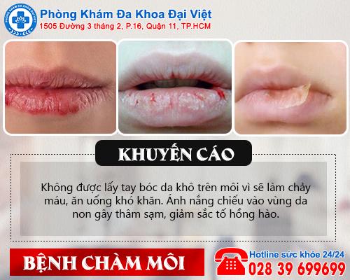 Chàm môi: Nguyên nhân và triệu chứng