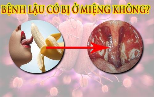 Bệnh lậu có bị ở miệng không? Nhận biết qua dấu hiệu nào?