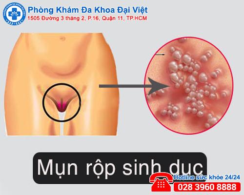 Bị mụn rộp vùng kín chớ đừng coi thường - Đa khoa Đại Việt