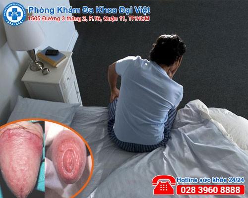 Bộ phận sinh dục nổi mụn, nổi mẩn đỏ là bệnh gì-phòng khám đa khoa đại việt