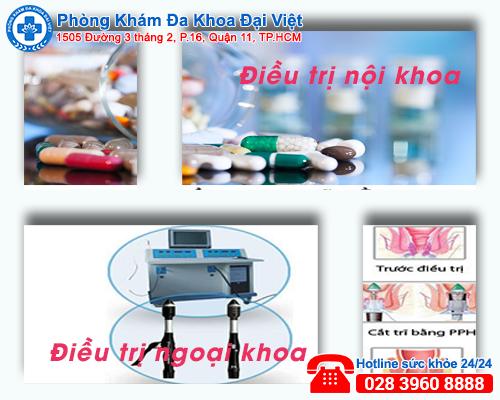 Các phương pháp điều trị trĩ ngoại hiệu quả tại Đa Khoa Đại Việt
