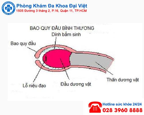 dính bao quy đầu - Phòng Khám Đa Khoa Đại Việt