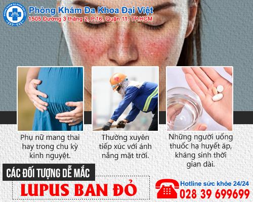 Lupus ban đỏ: Căn bệnh nguy hiểm vô cùng