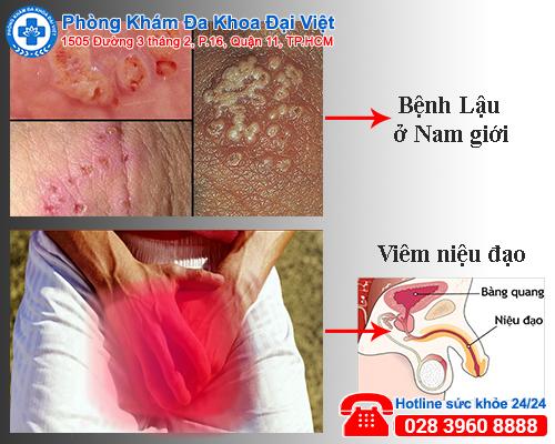 Đừng chủ quan khi dương vật chảy mủ - Đa khoa Đại Việt