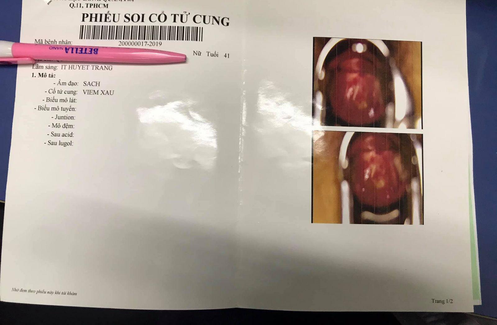 Giấy nội soi của Nguyễn Thị Bạch Mỹ