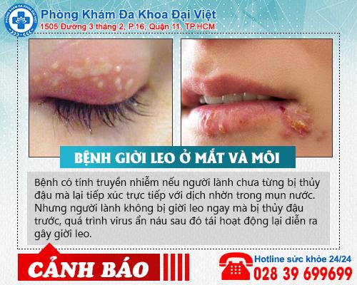 Giời leo ở mắt và môi có nguy hiểm không?