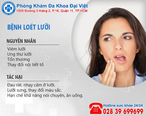 Cách điều trị tình trạng loét lưỡi hiệu quả