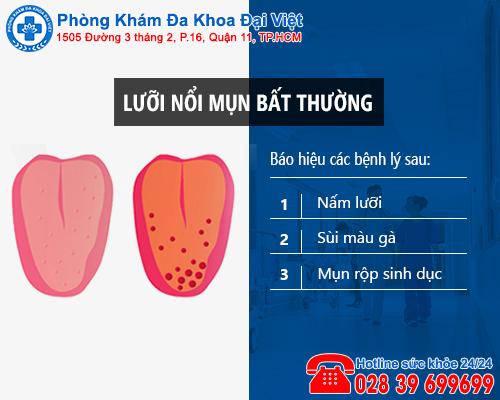 Lưỡi nổi mụn bất thường có phải dấu hiệu của bệnh nguy hiểm