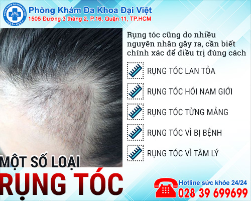 Các loại rụng tóc và triệu chứng không phải ai cũng biết