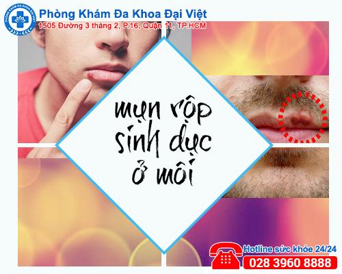 mụn rộp sinh dục - Phòng Khám Đa Khoa Đại Việt
