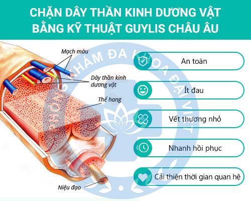 Phương pháp Guylis