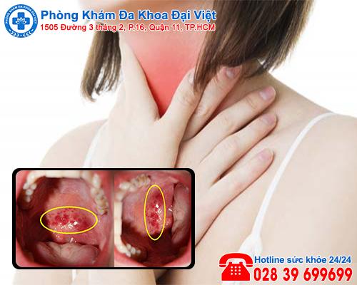Nguy cơ bị ung thư vòm họng do mắc viêm họng hạt - Phòng Khám Đại Việt