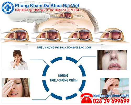 Nguyên nhân gây phì đại cuốn mũi - Đa Khoa Đại Việt