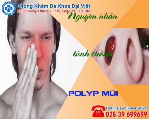 Nguyên nhân hình thành polyp mũi và các triệu chứng thường gặp - Đa Khoa Đại Việt