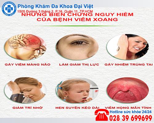 Những biến chứng nguy hiểm của bệnh viêm xoang - Đa Khoa Đại Việt