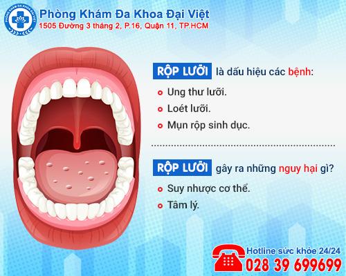 Tự nhiên bị rộp lưỡi là dấu hiệu bệnh gì, điều trị ra sao?