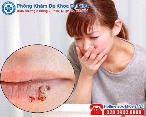 Sùi mào gà ở môi, miệng, lưỡi và những điều cần biết-phòng khám đa khoa đại việt