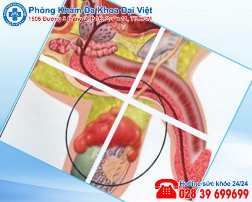 sưng tinh hoàn - Phòng Khám Đa Khoa Đại Việt