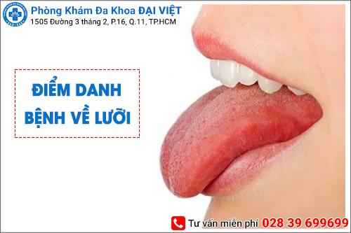 Điểm danh một số bệnh về lưỡi thường gặp và nguy hiểm