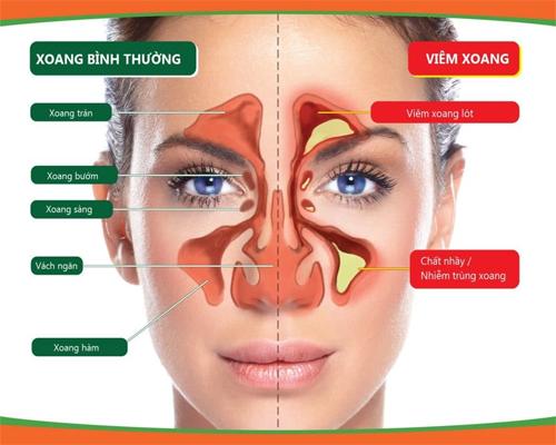 Bệnh viêm xoang – cần tiến hành những xét nghiệm nào khi khám - Đa Khoa Đại Việt
