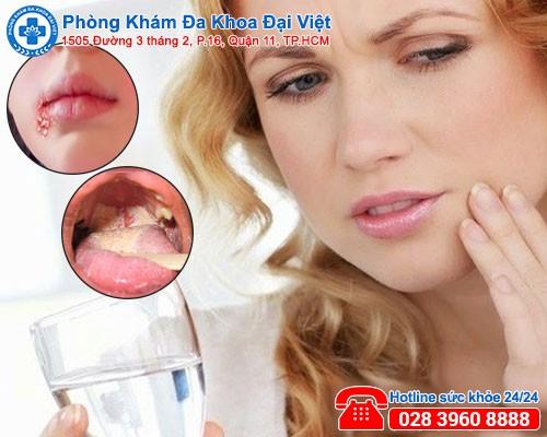 Triệu chứng nhận biết bệnh lậu ở miệng-phòng khám đa khoa đại việt
