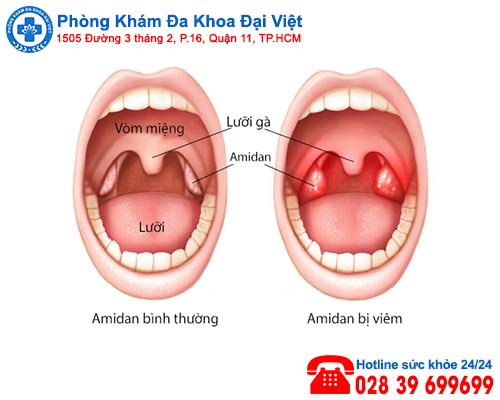 Triệu chứng và tác hại của viêm amidan - Đa Khoa Đại Việt