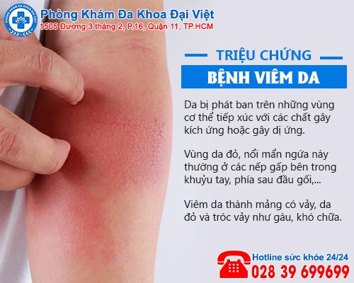 Tác nhân dẫn đến bệnh viêm da bạn nên biết
